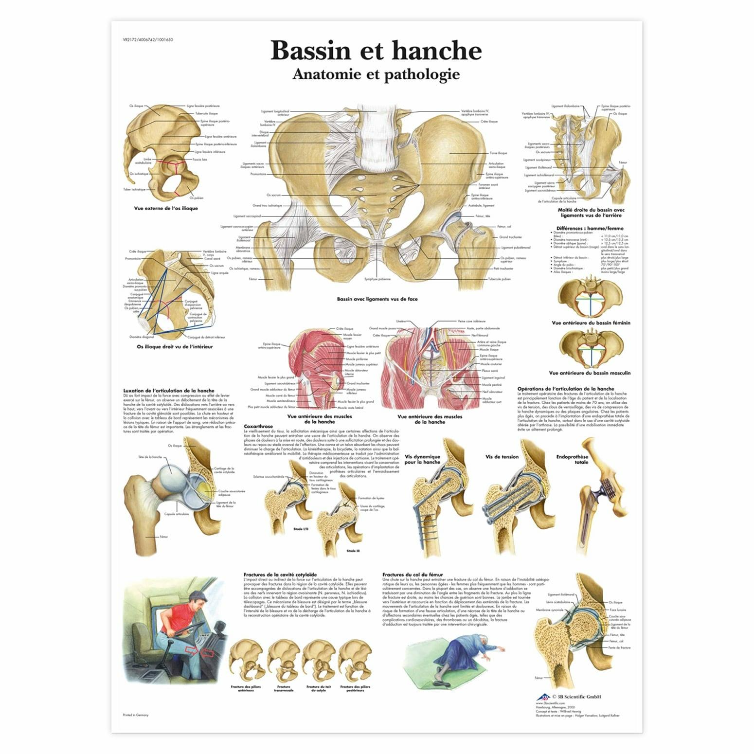 Planche anatomique Bassin et hanche, anatomie et pathologie