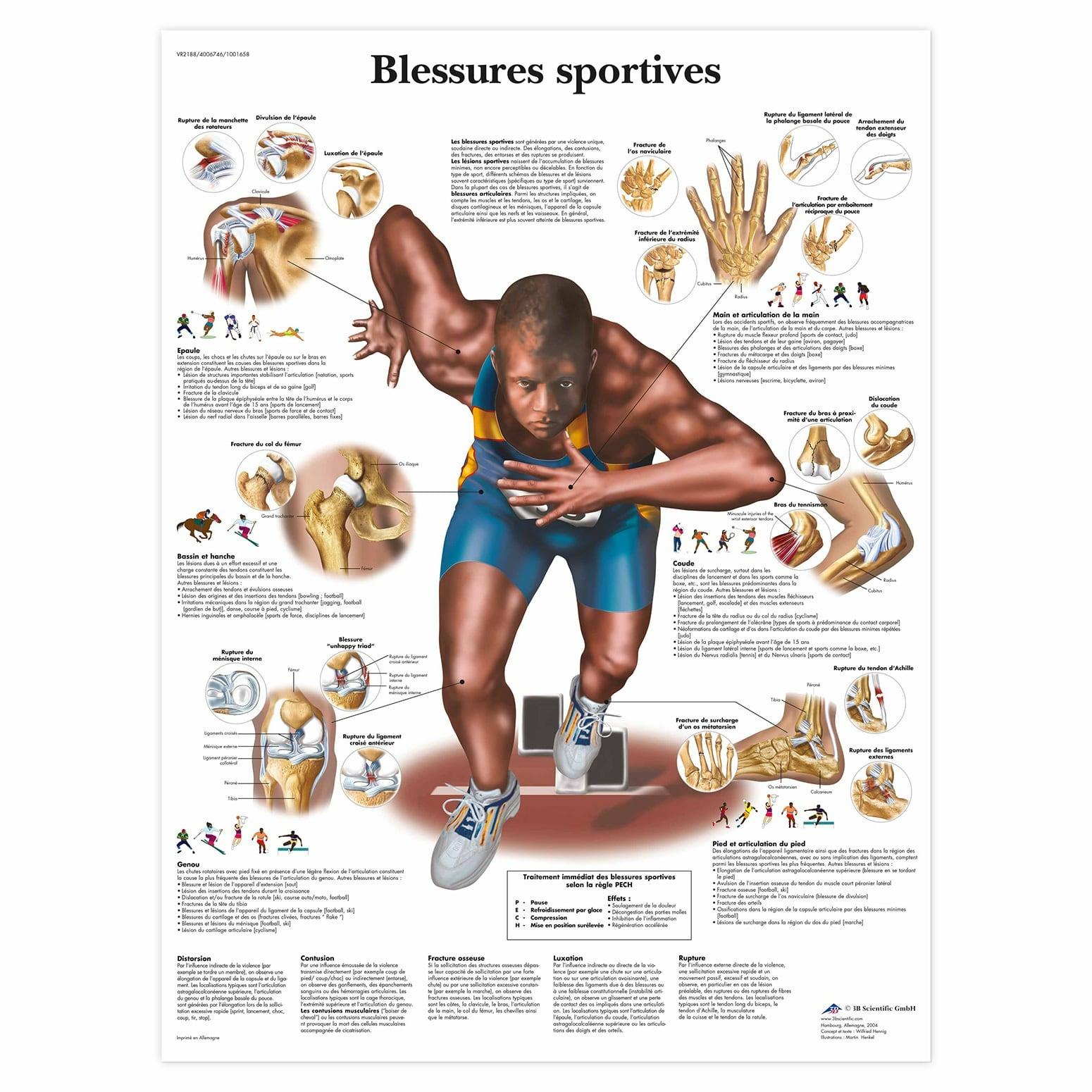 Planche anatomique Blessures sportives