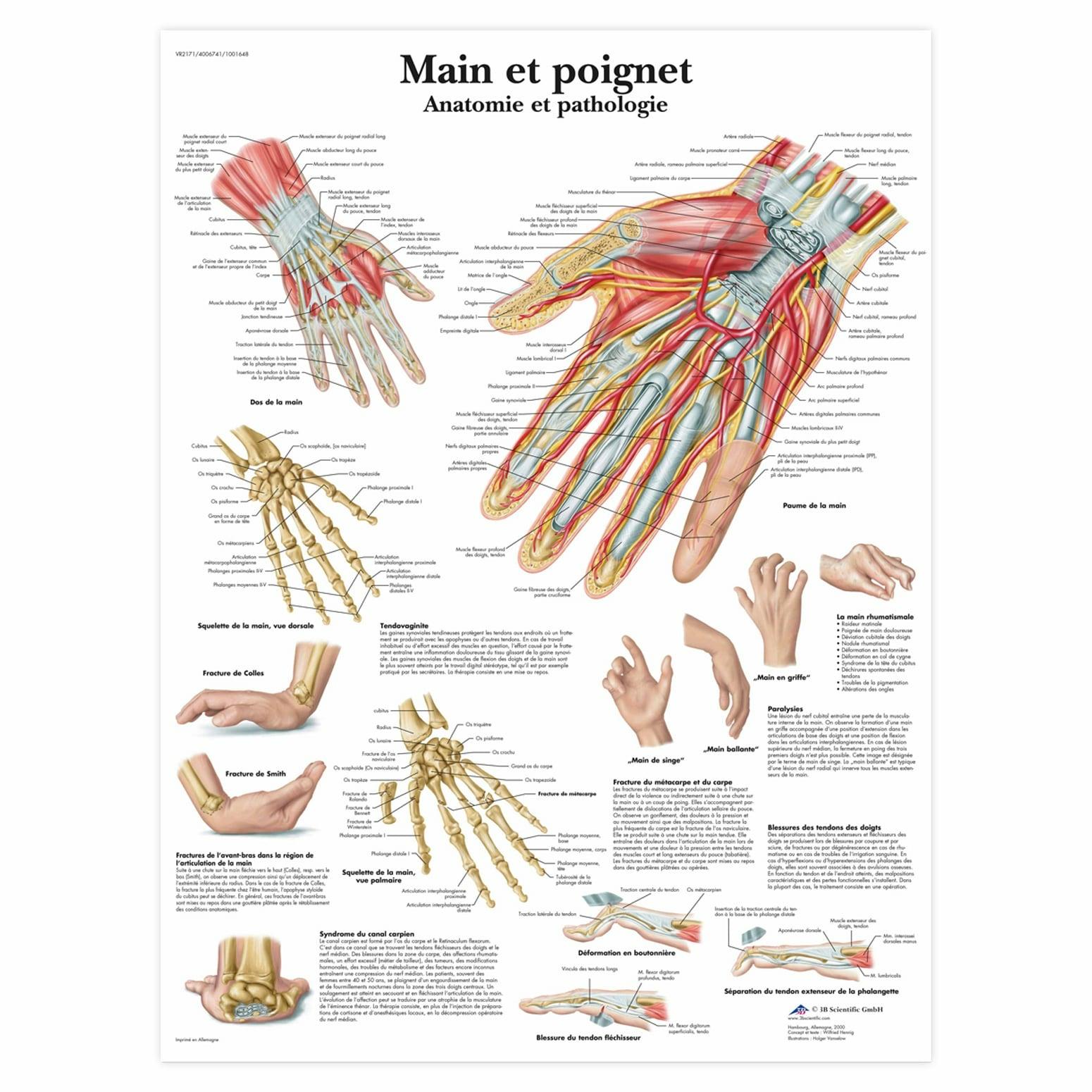 Planche anatomique Main et poignet : anatomie et pathologie